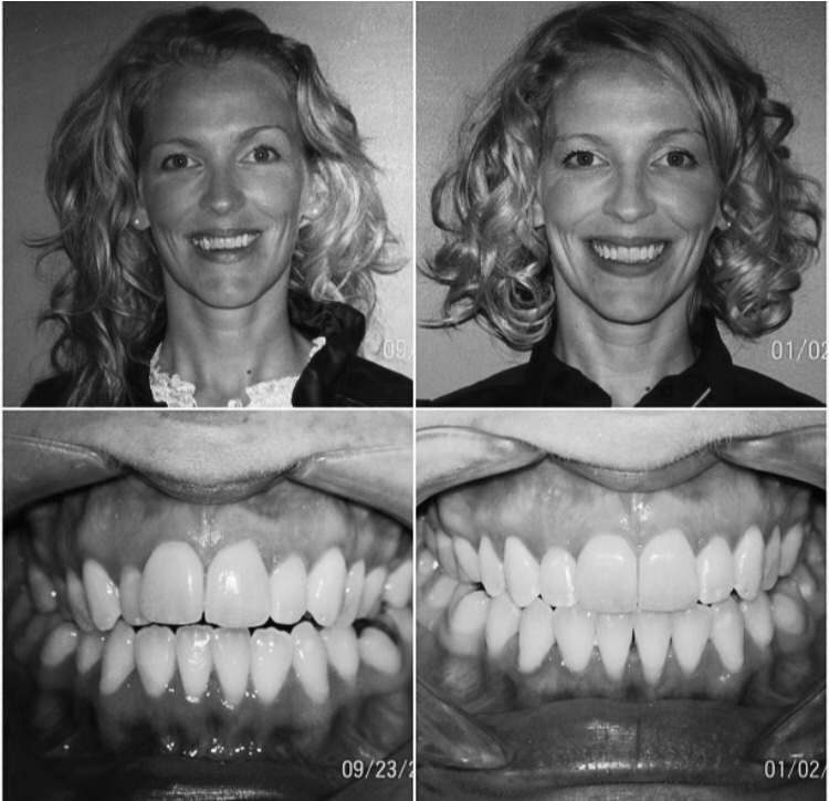 Dental Photos